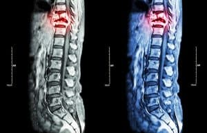 Why Spinal Cord Injuries Often Require a Lifetime of Medical Care